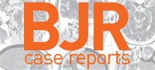 BJR | case reports