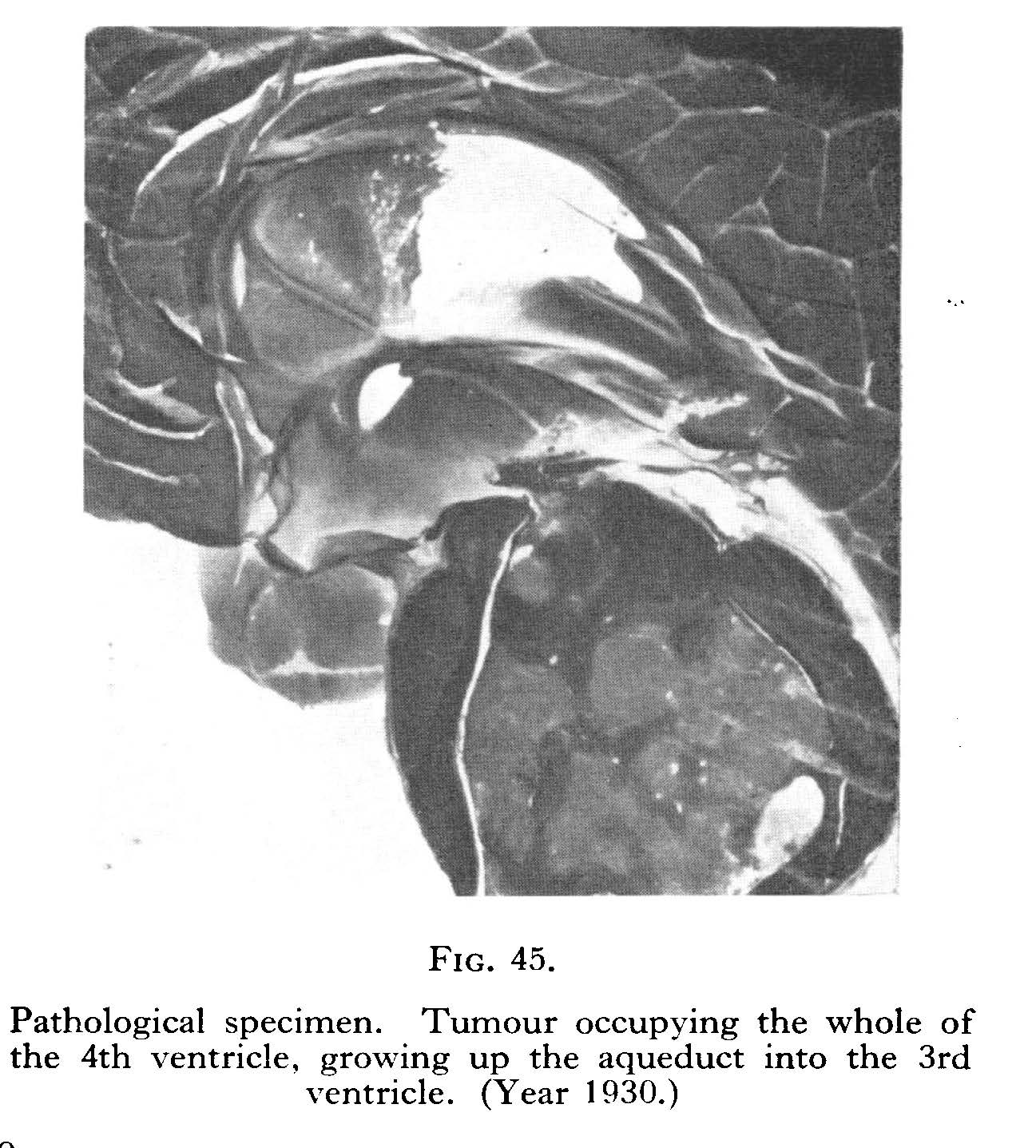 Tumour occupying the whole of the left ventricle