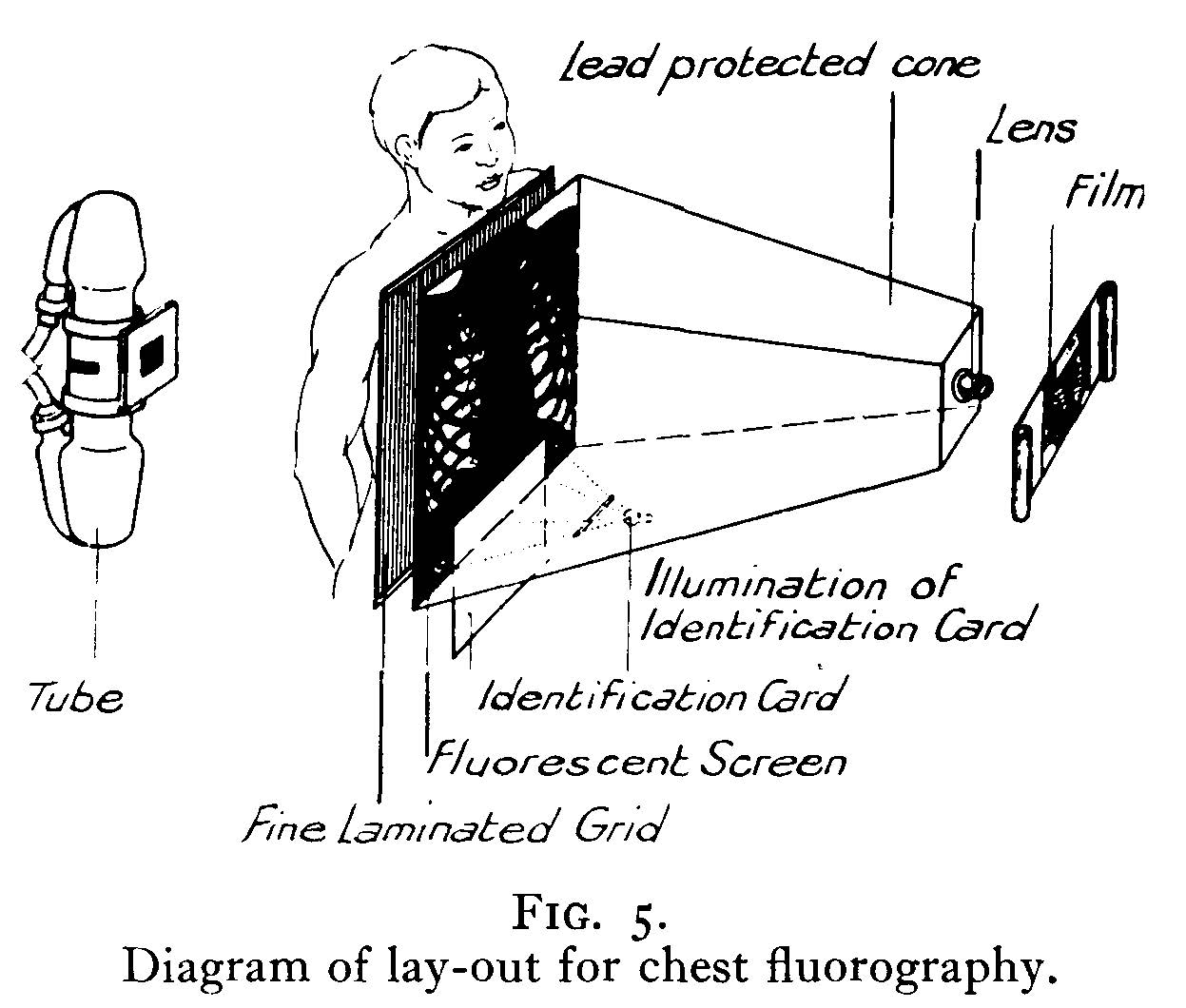 Diagram of lay out for chest fluorography