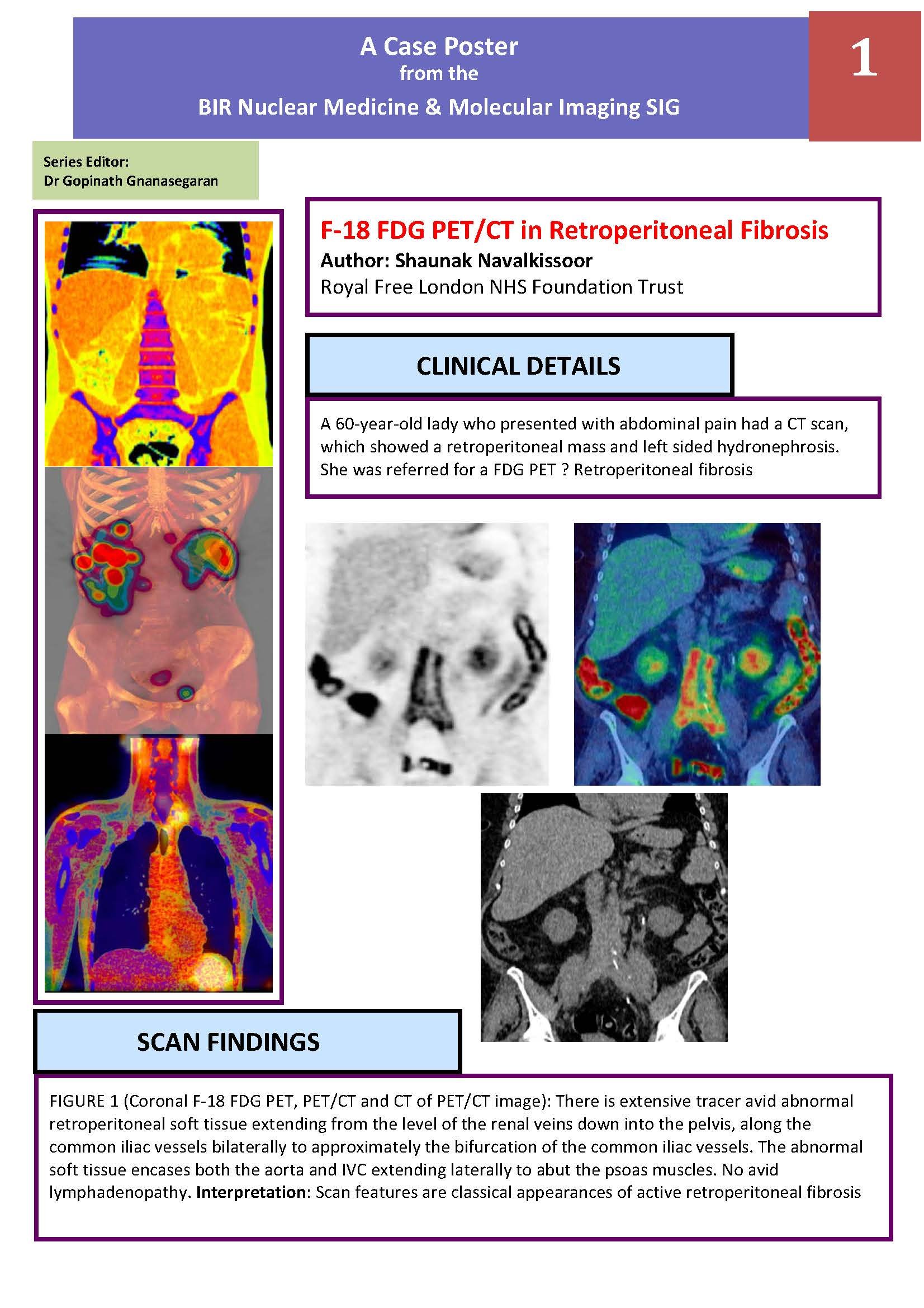nmmi case posters british institute of radiology