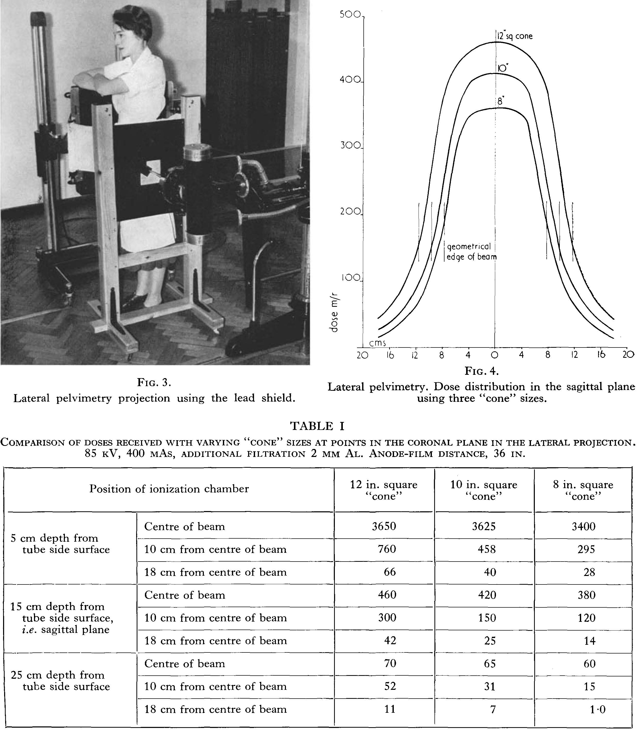 Pelvectory and table of comparison of radiation doses