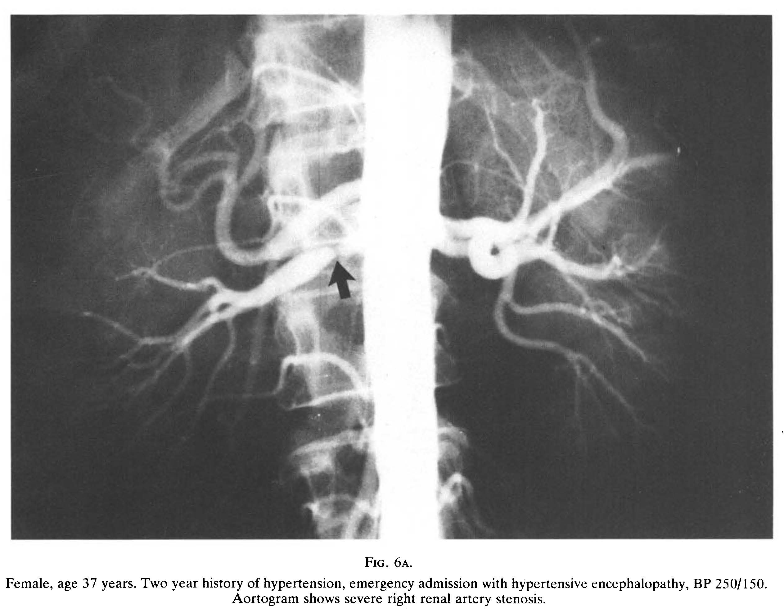 Image of renal artery stenosis
