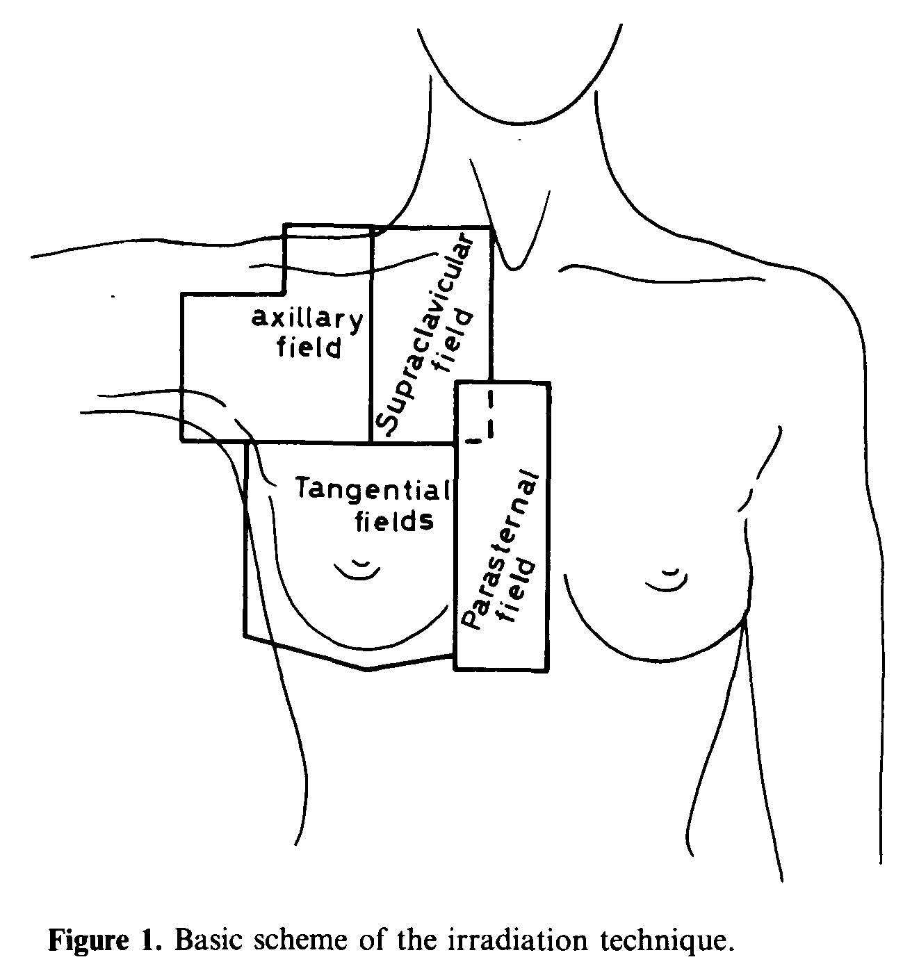 Irradiation technique for breast tumours
