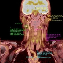PET-CT in head and neck cancer